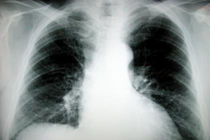 xray chest radiology